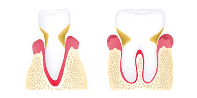 Moderate periodontitis illustration